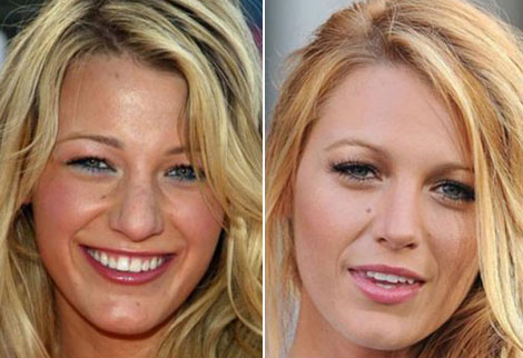 Blake Lively nose job plastic surgery