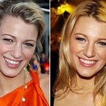 Blake Lively plastic surgery nose