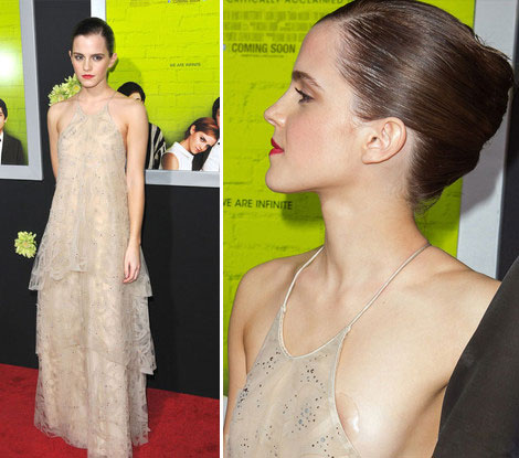 Everybody Talked About: Emma Watson's Wardrobe Malfunction