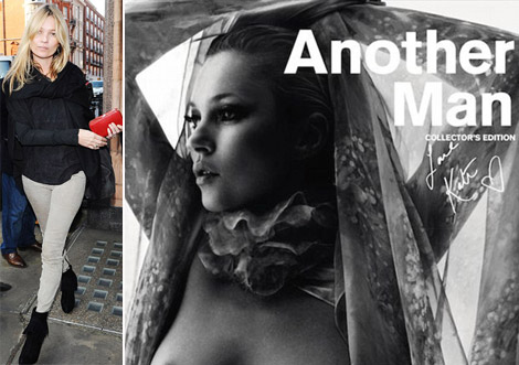 Kate Moss Over Her Paralysis. Covers Another Man Magazine