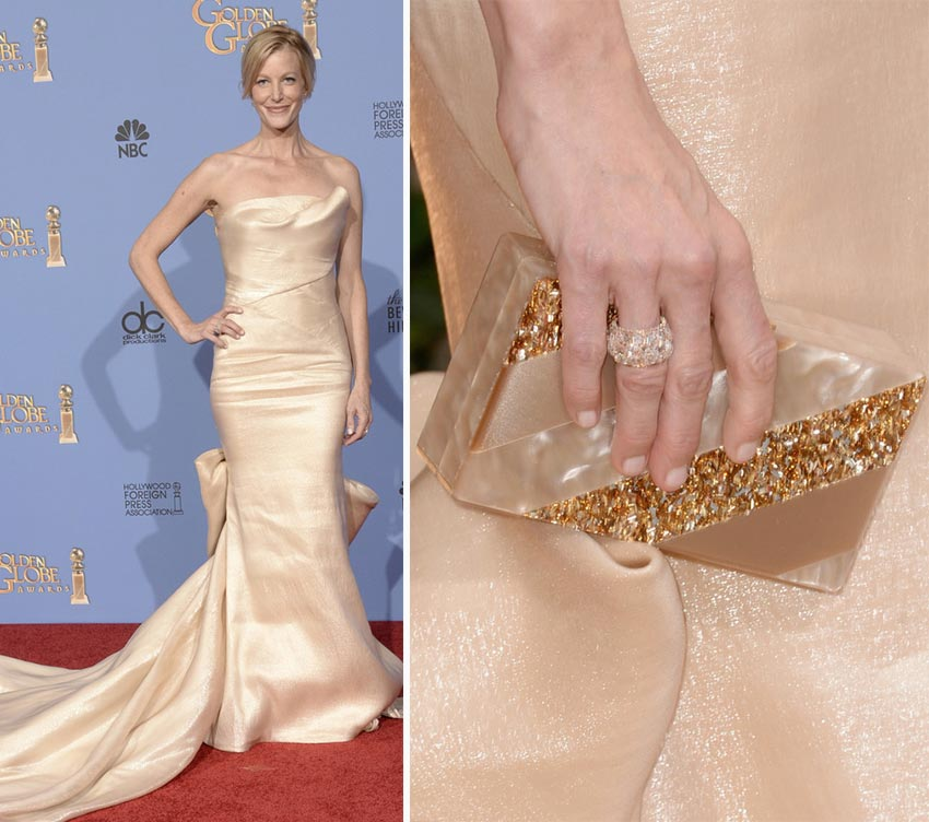 Anna Gunn nails 2014 Golden Globes