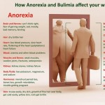 how Anorexia and bulimia affect the person inforaphic