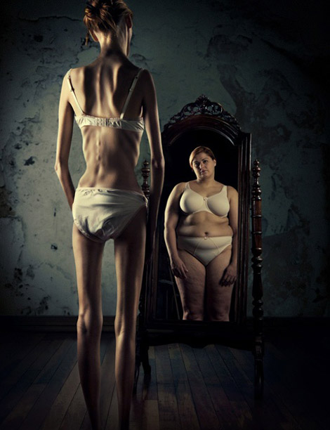 Anorexia. What They Really See In The Mirror!
