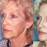 Co2 laser resurfacing anti wrinkles treatment