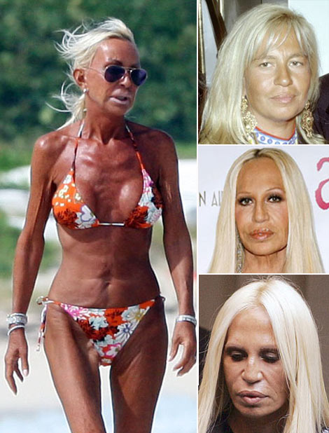 Donatella Versace before after surgery