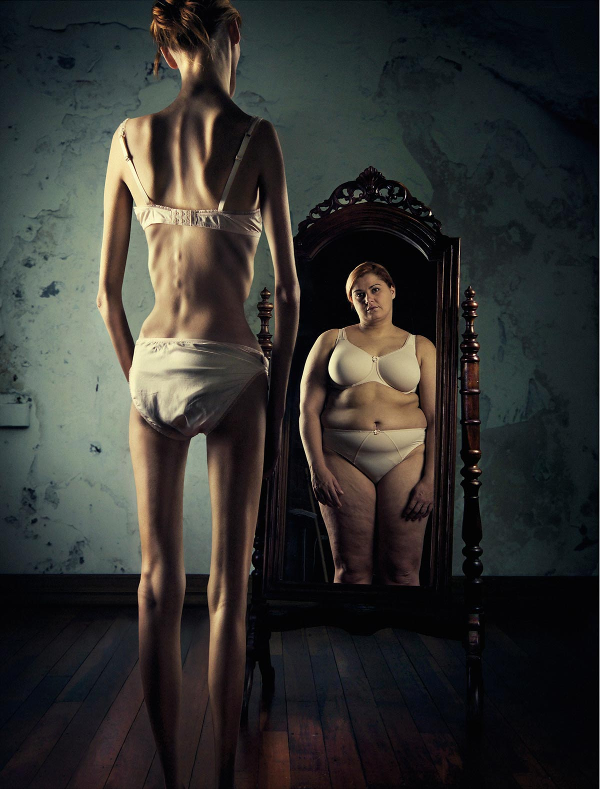 Eating disorder mirror anorexia Ross Brown Geoff Francis