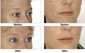 Hyaluronic Acid anti wrinkles treatement