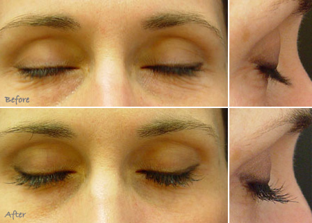 Lumigan effects on eyelashes