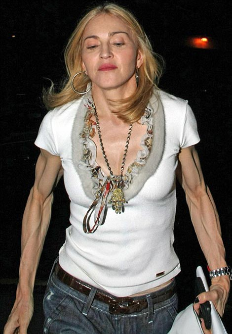 Madonna's Fitness Disaster