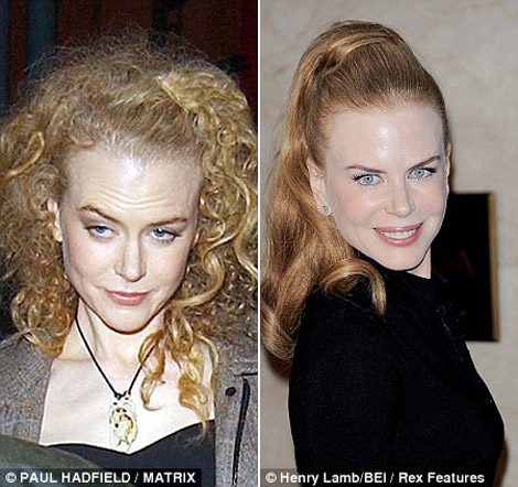 Nicole Kidman before after botox