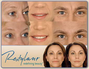 Restylane Injections Images